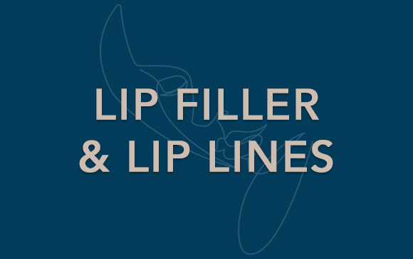 lip filler and lip lines