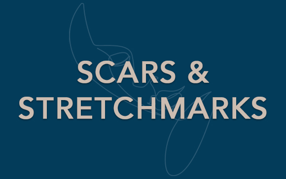 scars and stretchmarks